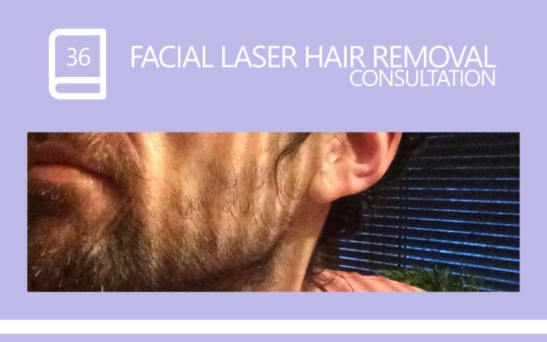 36 • FACIAL LASER HAIR REMOVAL – CONSULTATION