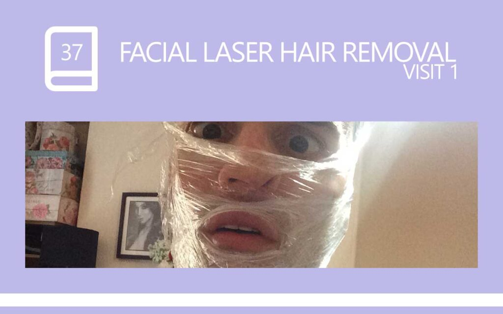 Let the Pain Begin ... My first experience of Facial Laser Hair Removal at a local clinic in Plymouth, with Transgender Model & Artist Sophie Lawson