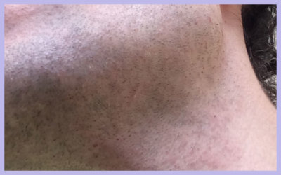 FACIAL LASER HAIR REMOVAL – SESSION 1