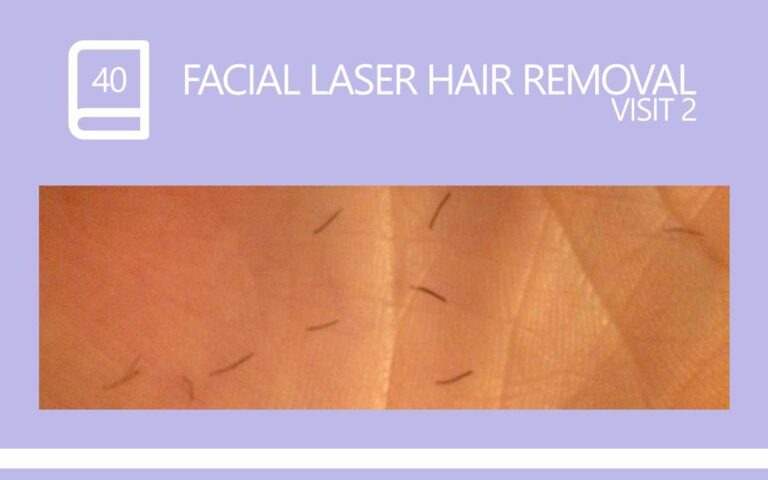 40 • FACIAL LASER HAIR REMOVAL – SESSION 2