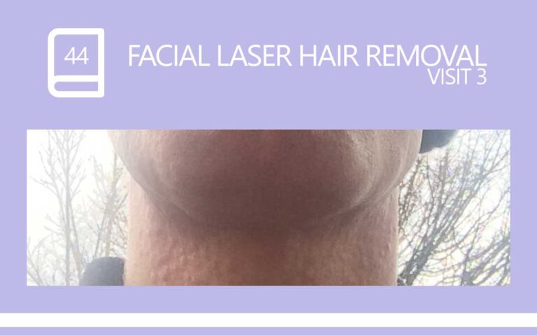44 • FACIAL LASER HAIR REMOVAL – SESSION 3