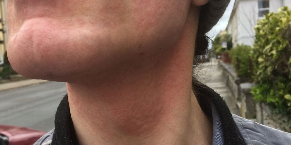 Facial Laser Hair Removal Session Four. Minutes after the Laser, by Transgender Artist Sophie Lawson