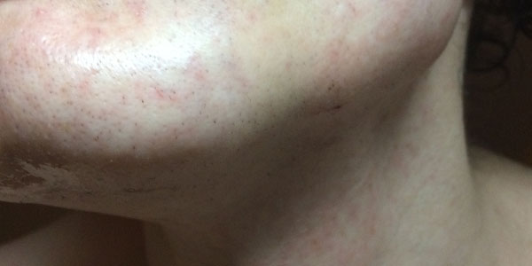 Facial Laser Hair Removal Session Four. An hour after the Laser, by Transgender Artist Sophie Lawson
