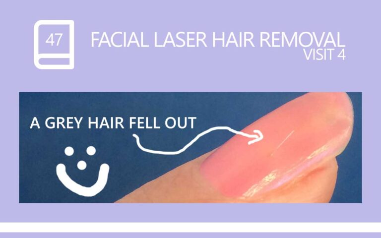 47 • FACIAL LASER HAIR REMOVAL – SESSION 4