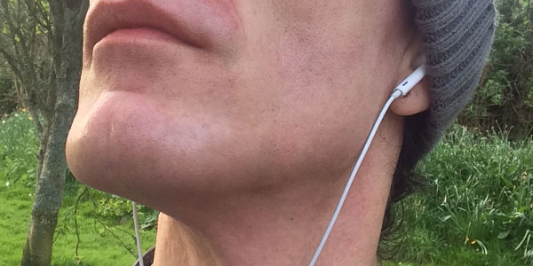 Facial Laser Hair Removal Session Five. Minutes after the Laser, by Transgender Artist Sophie Lawson