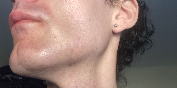 Facial Laser Hair Removal Session Five. The Day After, by Transgender Artist Sophie Lawson