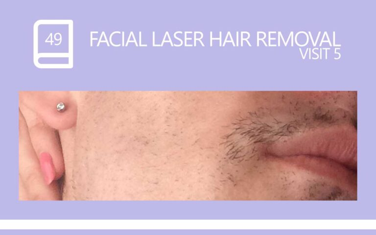 49 • FACIAL LASER HAIR REMOVAL – SESSION 5