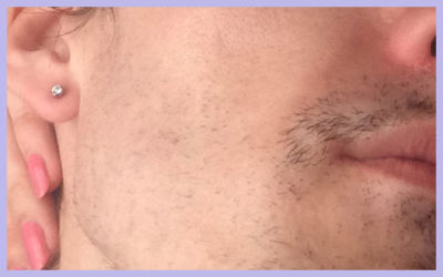 FACIAL LASER HAIR REMOVAL – SESSION 5