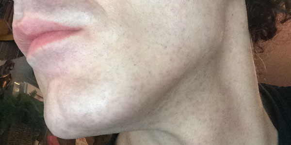 Facial Laser Hair Removal Session Six. Hours After, by Transgender Artist Sophie Lawson