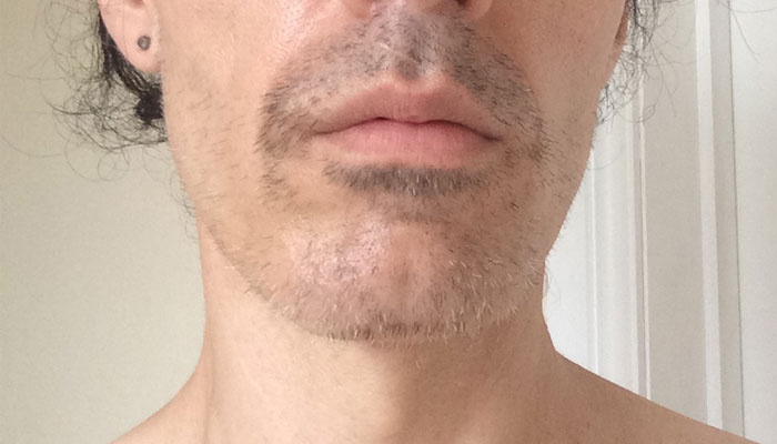 Facial Laser Hair Removal Session SIX. One week of growth, by Transgender Artist Sophie Lawson