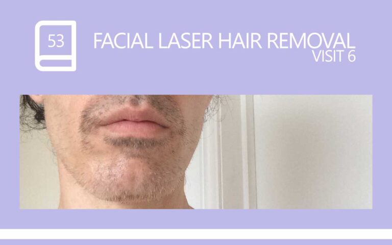 53 • FACIAL LASER HAIR REMOVAL – SESSION 6