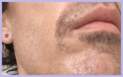 FACIAL LASER HAIR REMOVAL – SESSION 6